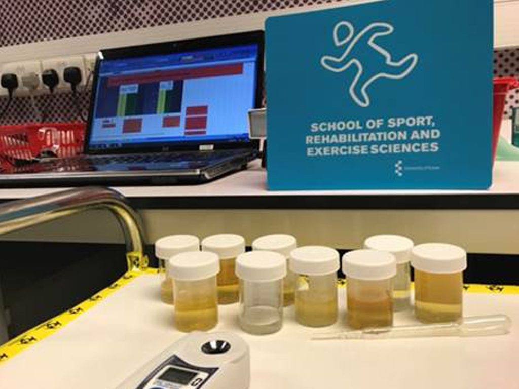 urine samples to analyse for hydration status